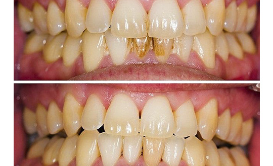 Чистка зубов 2